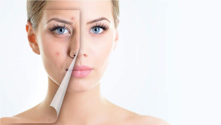 Cum sa iti ingrijesti tenul acneic